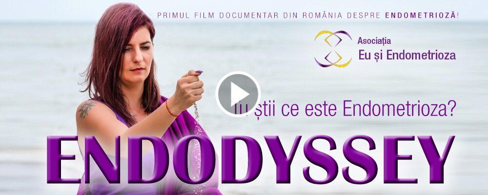 Trailer Endodyssey